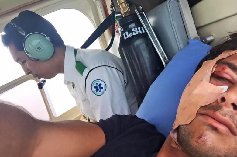 Джереми Флорес  сильно пострадал во время сёрфинга в Индонезии